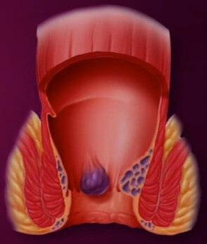 Qu'est ce qu'un Hémorroide Interne ?